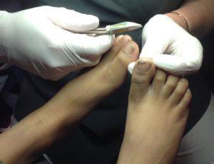 Nagelklippning